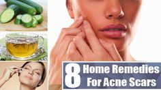 Looking for the greatest,quickest, and the best efficient natural remedy for acne is not as easy as some people consider. In many cases, it might become a trial-and-error process. Ayurvedic Home Remedies, Natural Acne Remedies, Home Remedies For Acne, Pimple Marks, Pimples, Acne Scar Removal, Acne Breakout, Remove Acne