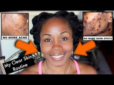 Get Rid of Acne Scars, Dark Spots and Hyperpigmentation | My NEW Daily Face Care Routine - YouTube