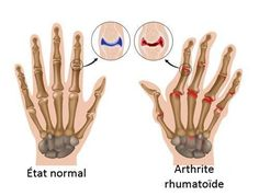 Home Remedies for Arthritis in Hand. How to Get Rid of Arthritis in Hand? Cure Arthritis in Hand Fast. Treat Arthritis in Hand. Rheumatoid Arthritis Hands, Yoga For Arthritis, Rheumatoid Arthritis Treatment, Knee Arthritis, Arthritis Pain Relief, Types Of Arthritis, Arthritis Symptoms, Arthritis Gloves, Autoimmune Disease