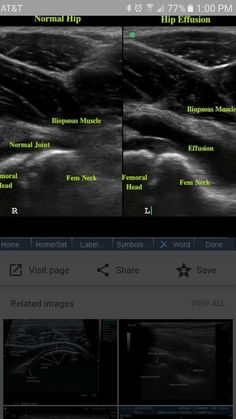Normal infant hip ultrasound coronal view. | Radiology Case ...