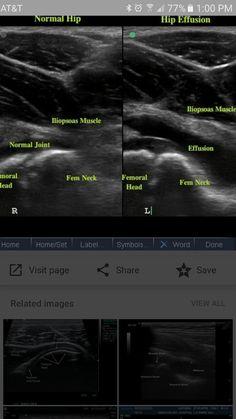 Ultrasound Physics, Ultrasound Technician, Medical Imaging, Sports Medicine, Nclex, Sounds Good, Pediatrics, Muscles, Anatomy