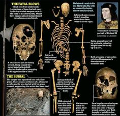 King Richard III. His skeleton was discovered and autopsied and it gave tons of info on his life and death.