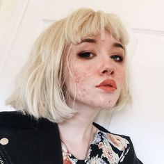 This teenage girl is encouraging others to show off their acne These gorgeous ac.,This teenage girl is encouraging others to show off their acne These gorgeous acne selfies are going viral after a user shared a foundation-free shot . Teenage Hairstyles, Hairstyles For School, Hairstyles With Bangs, Girl Hairstyles, Easy Hairstyles, Casual Hairstyles, Popular Hairstyles, Aesthetic People, Aesthetic Girl