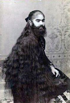 Annie Jones bearded lady
