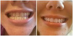 Want to get those teeth looking their whitest? Check out how the Smile Brilliant Custom Tray Kits can help. Charcoal Teeth Whitening, Natural Teeth Whitening, Beauty Tutorials, Beauty Hacks, White Teeth, All Things Beauty, Pedi, Beautiful, Trays