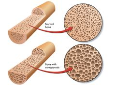 Scientists at the Institute of Biomedical Sciences at Scripps, the US have found a way to regenerate bone from stem cells.