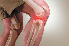 Pain-Free Joints, Naturally:    Beat arthritis symptoms with herbs and supplements.