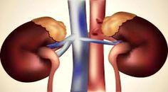 5 Gejala Penyakit Ginjal yang Harus Kamu Waspadai! - http://wp.me/p70qx9-6SW