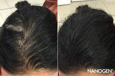 Maska na vlasy   TOP 7 najúčinnejších domácich receptov Long Hair Styles, Beauty, Long Hairstyle, Long Haircuts, Long Hair Cuts, Beauty Illustration, Long Hairstyles, Long Hair Dos