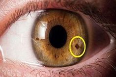 In a study well-timed for summer, vision scientists have found that eye freckles, dark spots on the colored part of the eye (iris), are more frequently found in people with higher lifetime exposure to Spots In Eyes, Dark Spots, Alternative Therapies, Alternative Health, Natural Cures, Natural Health, Health And Nutrition, Health Tips, Health Facts