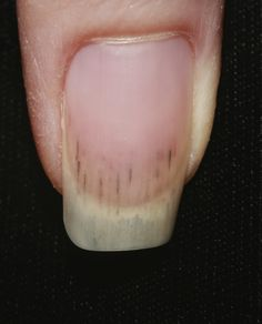 splinter hemorrhages in infective endocarditis - Google Search