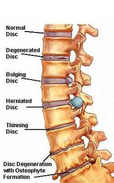 disc problems labeled normal degenerated bulging herniated thinning osteophyte formation color drawing - I have 4 out of 6 in the cervical, thoracic and lumbar. Spinal Arthritis, Psoriatic Arthritis, Back Surgery, Spine Surgery, Degenerative Disc Disease, Spine Health, Chiropractic Care, Physical Therapist, Physical Therapy Student