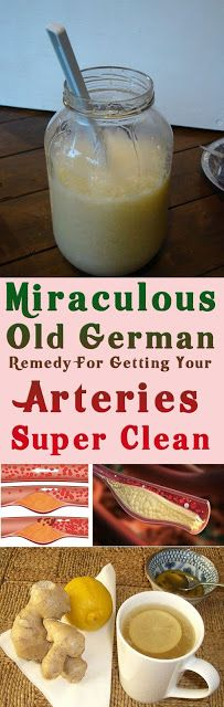 Natural Remedies For Arthritis Miraculous Old German Remedy For Getting Your Arteries Super Clean This old German remedy have the power to detoxify your body and cleaning up your arteries if you take it regularly for a few days! Holistic Remedies, Natural Health Remedies, Natural Cures, Herbal Remedies, Health And Wellness, Health Tips, Health Fitness, Wellness Tips, Healthy Drinks