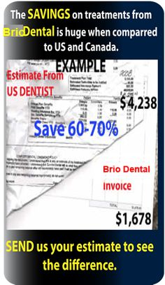 Dentists in Mexico for Implants, Dentures, Crowns, Root Canals, & Cosmetic Dentistry. Treating Americans since 2005. Our free transportation will take you from across Texas border to clinic five min. away https://brio-dental.com/ mexico dentist, dentist in mexico, dental implants juarez mexico