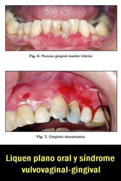 PDF: Liquen plano oral y síndrome vulvovaginal-gingival. A propósito de un caso | OVI Dental