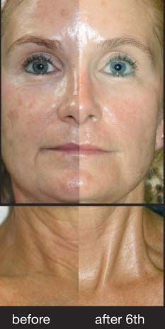SWiCH Treatment Before/After provided by manufacturer.  Currently 15% off if buying a series. Contact me at michelle@truthskincare.com for details.
