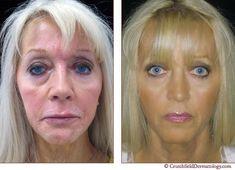 The Y Lift Face Lift Procedure Phoenix Skin Y Lift Before
