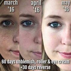 Rodan + Fields Unblemish is for acne and post acne marks.  Take control of your skin.  60 day money back guarantee.  Message me on pinterest @ R+Fskincare101.