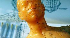Cómo encontrar un buen acupunturista