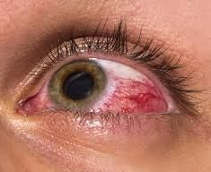 DIY Medical Treatments to Avoid - Everyday Health Some people are using breastmilk to cure pink eye.Some people are using breastmilk to cure pink eye. Natural Pink Eye Remedy, Natural Eyes, Natural Home Remedies, Natural Healing, Alternative Health, Alternative Medicine, Red Eyes Remedy, Cannabis, Bloodshot Eyes