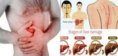 12 Semne Clare Care Arată Că Ai Probleme Cu Ficatul! Cum Se Transformă Corpul Tău