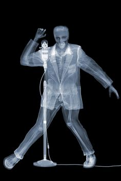 NICK VEASEY | Elvis. Lenticular X-ray Print
