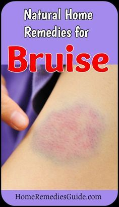 Natural Home Remedies for Bruise