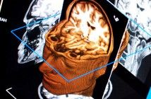 Images of brain after mild stroke predict future risk