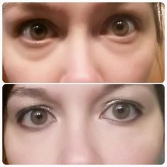 #jeunesse #dayton #ohio #instantly #ageless #antiaging #skin #care #zen #bodi #body #weight #loss #natural #vitality http://thehoods.jeunesseglobal.com www.jeunesseohio.com