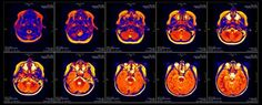 There could be a very serious problem with the past 15 years of research into human brain activity, with a new study suggesting that a bug in fMRI software could invalidate the results of some 40,000 papers. That's massive, because functional...