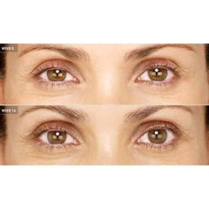 c975e08c168 Latisse is the first and only prescription treatment approved by the FDA  for inadequate or insufficient eyelashes, growing them longer, darker, ...