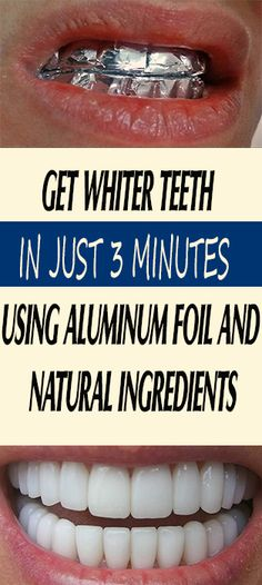 GET WHITER TEETH IN JUST 3 MINUTES USING ALUMINUM FOIL AND NATURAL INGREDIENTS #fitness #beauty #hair #workout #health #diy #skin #Pore #skincare #skintags #skintagremover #facemask #DIY #workout #womenproblems #haircare #teethcare #homerecipe