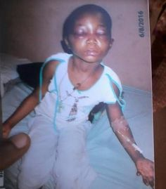 SAD! Nwole Precious' family give insight on how their daughter was tortured by her mistress in Abuja   Nwole Precious is a little girl of 7 (Seven years). She is from Umudioka village Awka in Awka South LGA of Anambra State. She lived at Abuja with one Mrs. Chinelo Ifezue from Mbaukwu of same local government area and state.  On the 6th August 2016 Precious was allegedly transported to Awka from Abuja by her mistress Mrs. Chinelo Ifezue. However on arrival to Awka little Nwole Precious was…