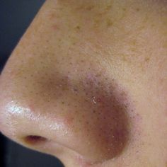 12 Best Home Remedies For Blackheads Backed By Science