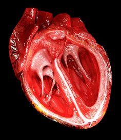 Recontrucción 3D del corazón