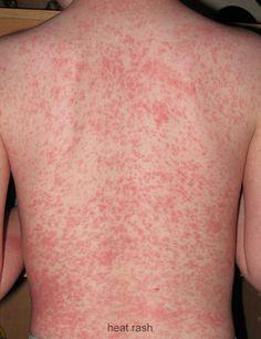 Heat rash on adult