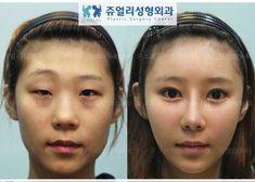 南韓診所公開!整形前後的戲劇化對比 | 鍵盤大檸檬
