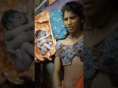 Rajasthan me janma Vichitra baccha Dekh Kar Jayenge aapke horse Girl Number For Friendship, Girl Friendship, Breastfeeding Animals, Whatsapp Mobile Number, Love Guru, Desi Bhabi, Girls Phone Numbers, Desi Bride, Tamil Girls