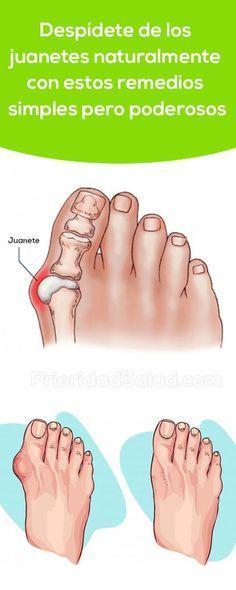 Prueba estos simples pero potentes remedios para quitar los juanetes en los pies de forma natural. Si padeces de acido úrico, gota o inflamación en las articulaciones ésta es la solución.