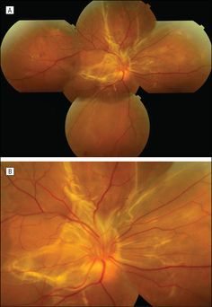 Massive Submacular Fibrosis After Ocular Blunt Injury Opthalmic Technician, Medical Photography, Eye Facts, Eye Doctor, Optometry, D Day, Optician, Anatomy, Eyes