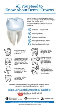 Everything You Need To Know About Your Dental Crowns www. The post Everything You Need To Know About Your Dental Crowns www. appeared first on Bobby Jivnani DDS . Dental Assistant Study, Dental Hygiene Student, Dental Surgeon, Dental Implants, Dental Procedures, Dental Hygienist, Dental Life, Dental Health, Oral Health