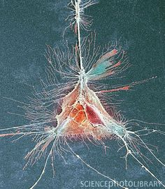 SEM of an oligodendrocyte cell- part of the nervous system