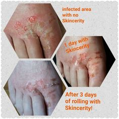 After 7 days this gentleman's foot was healed!  No scar, just fresh new skin! This product never ceases to amaze me! www.mynucerity.biz/tkar