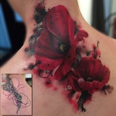 Poppies cover up tattoo