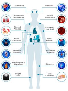 11 Reasons Why Too Much Sugar Is Bad for You : The Effects of Sugar on the Body Experts believe that excess sugar consumption is a major cause of obesity and many chronic diseases. Here are 11 negative health effects of consuming too much sugar. Sugar Detox Diet, Sugar Free Diet, Blood Pressure Watch, Lower Blood Pressure, Sugar Effects On Body, Garlic Supplements, Sugar Consumption, Uric Acid, Make Good Choices