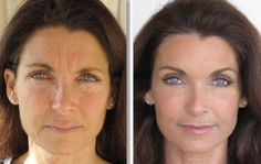 Face aerobics exercises is the perfect biological non-invasive facelift for all women and men. Saggy face exercises: Benefit from face yoga workouts to acquire a natural facelift