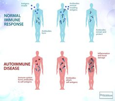 Chronic inflammatory conditions and autoimmune diseases are at an all-time high. This article goes over 5 steps to heal autoimmune disease. Chronic Stress, Chronic Pain, Fibromyalgia, Chronic Fatigue, Chronic Illness, Ulcerative Colitis, Rheumatoid Arthritis, Hypothyroidism, Ibs