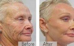 Skin Tightening Better than botox A mother reveals the anti-aging trick of the stars! Viewable results in 14 days Anti Aging Tips, Best Anti Aging, Anti Aging Skin Care, Natural Skin Care, Organic Skin Care, Creme Anti Age, Anti Aging Cream, Cara Fresca, Prevent Wrinkles