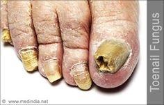 How Do You Get Toe Nail Fungus You can get more information about nail care at Purifythis.com