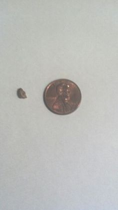 Kidney Stone Pictures 3 Cm Health Care Kidney